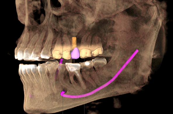 Dental Cone Beam Computed Tomography 1