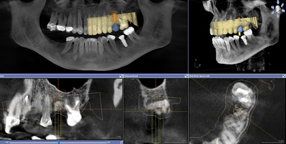 Dental Cone Beam Computed Tomography 2